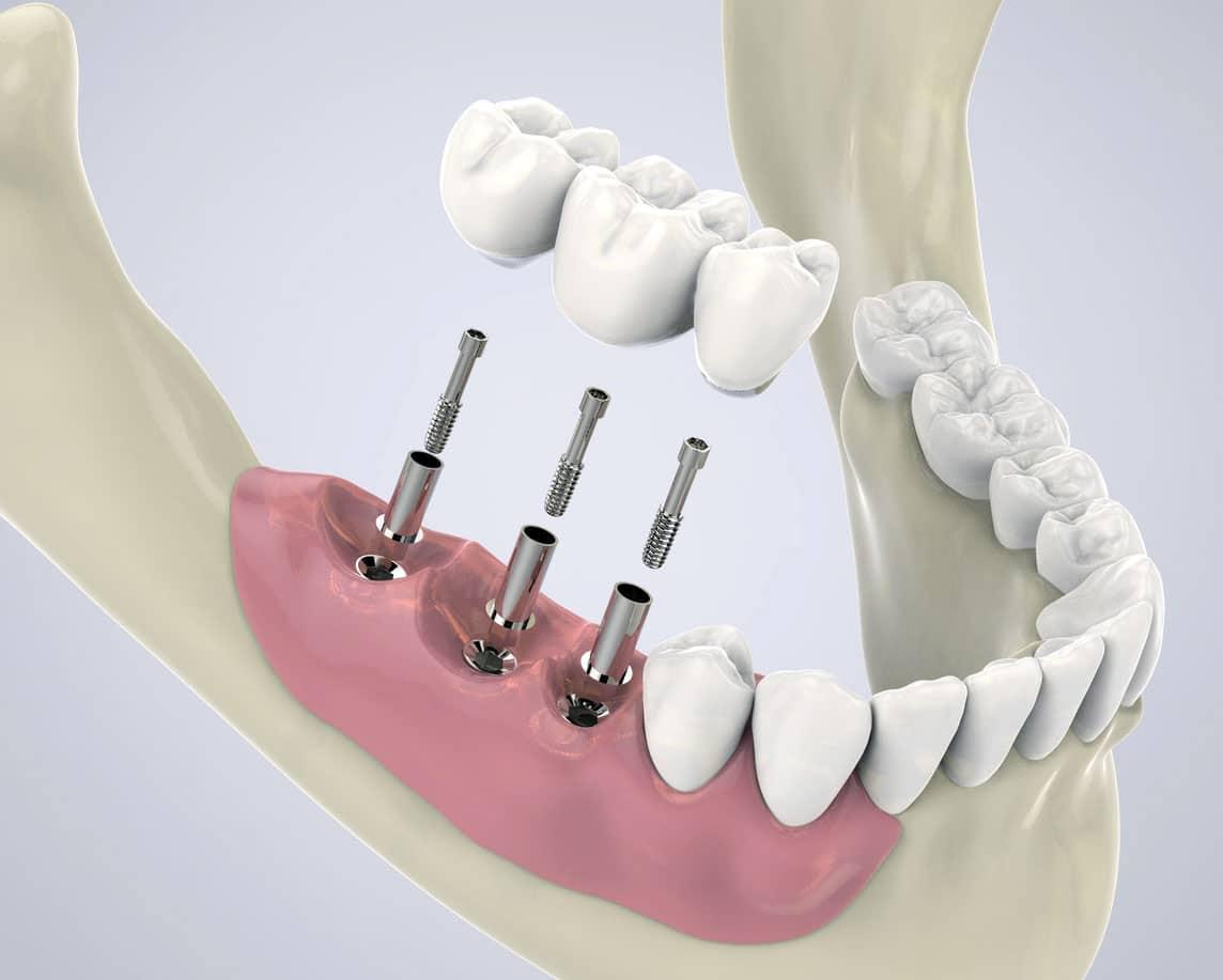 dental implants in warrawong nsw king street dental