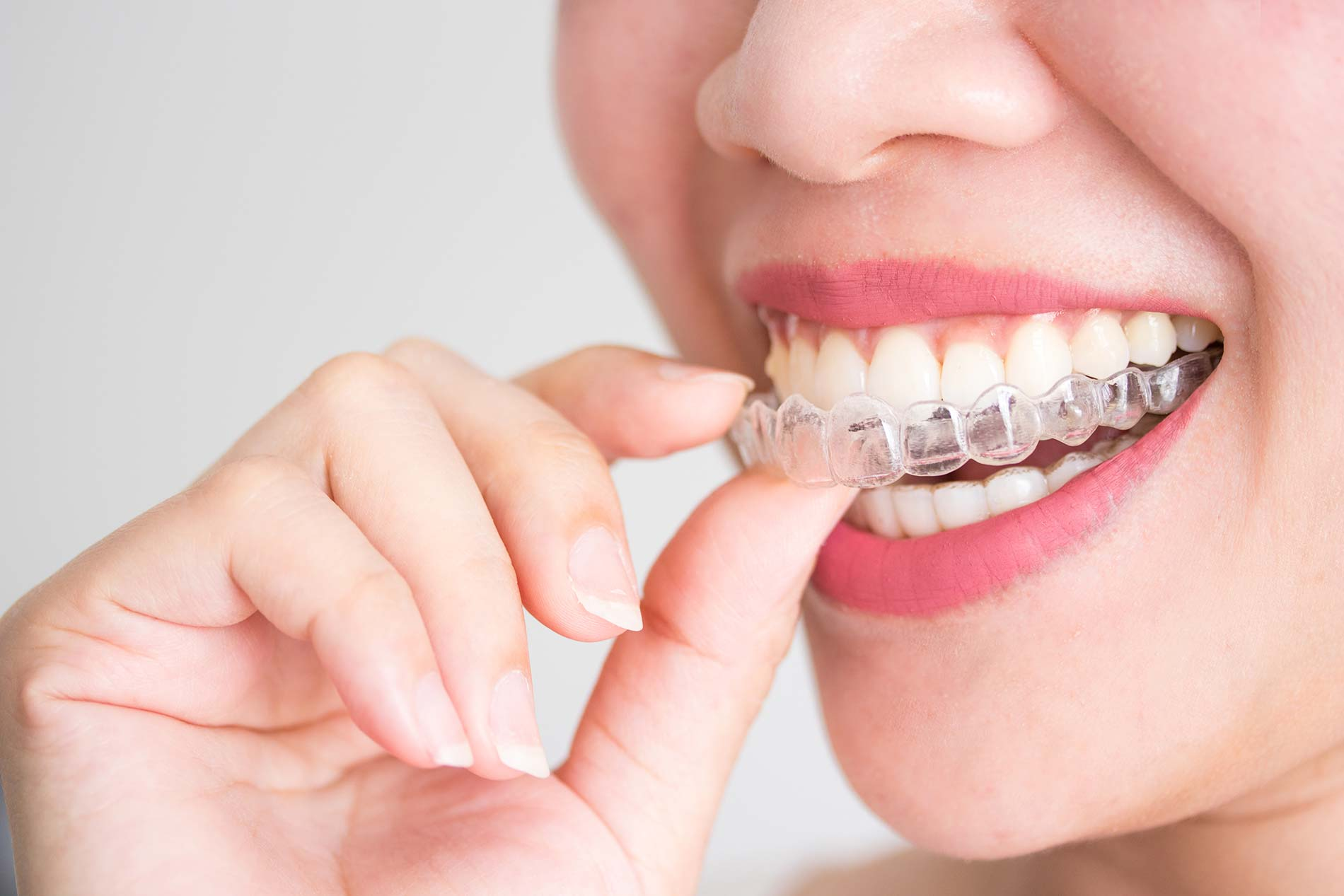 invisalign and teeth straightening
