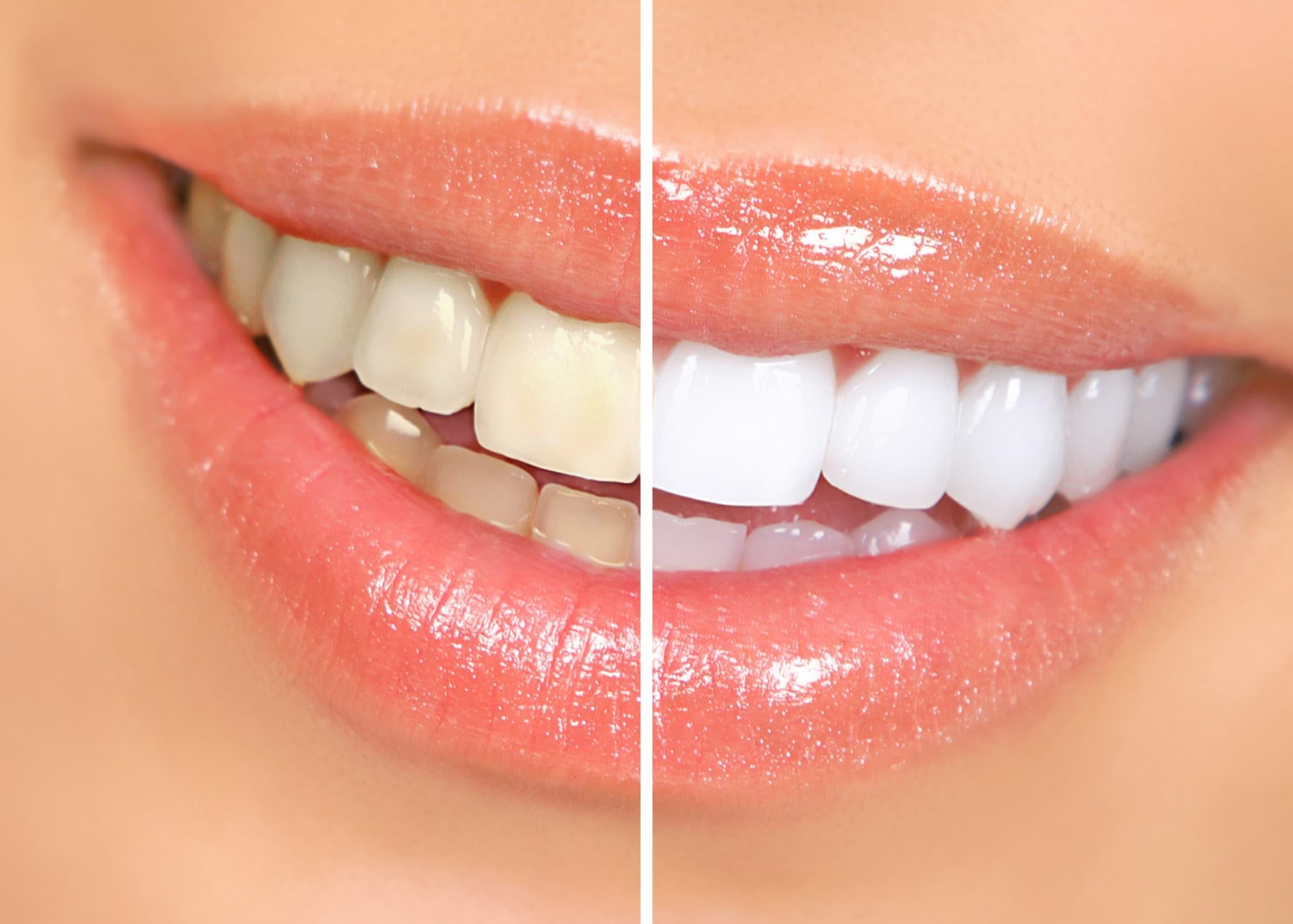 teeth whitening in warrawong nsw