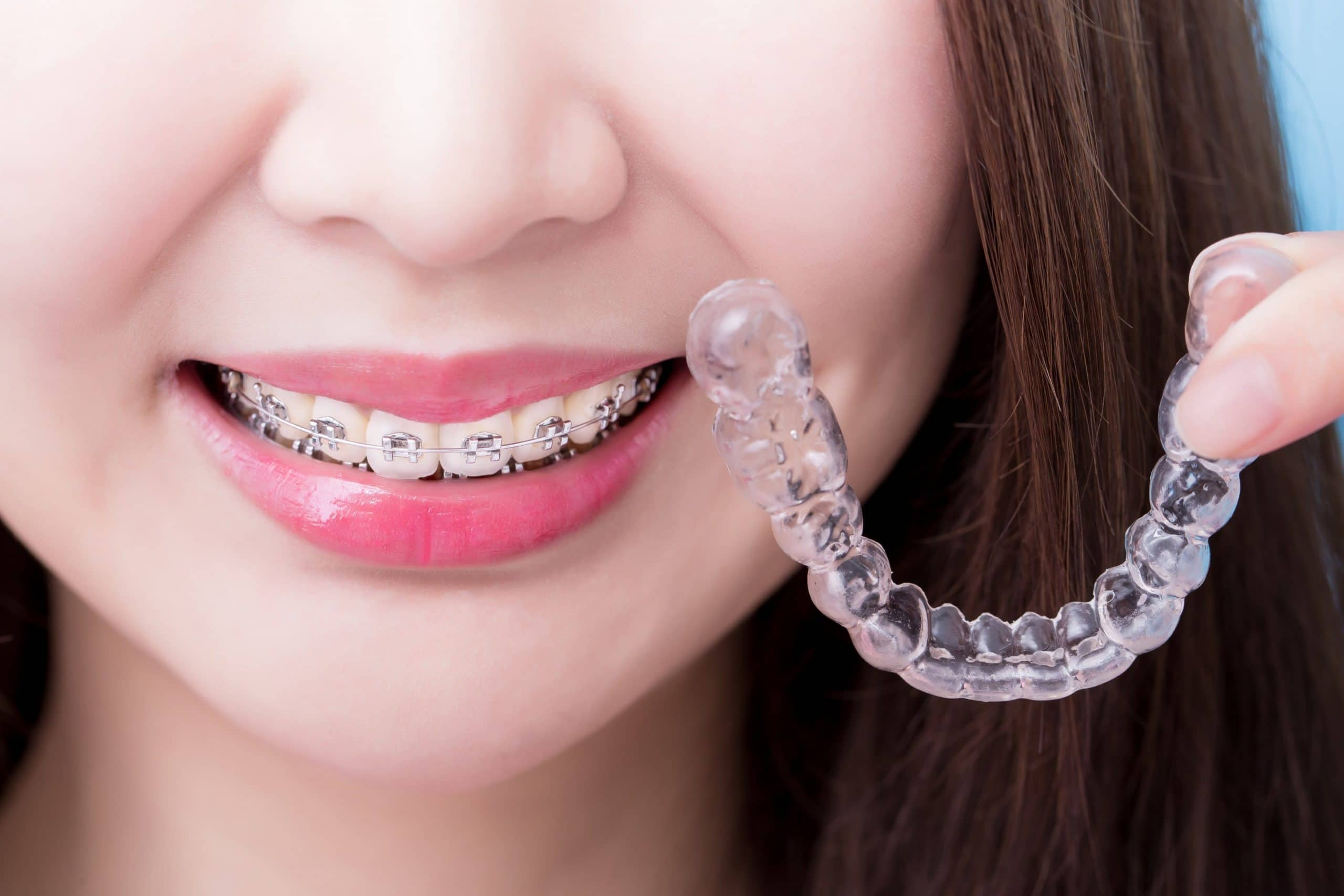 girl holding invisalign in wollongong