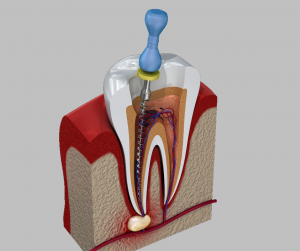 file in root canal